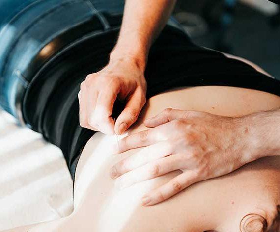 Fysiotherapie-de-Bleek-Content-Needling